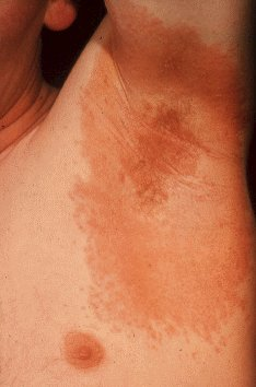 Allergic+contact+dermatitis+pictures