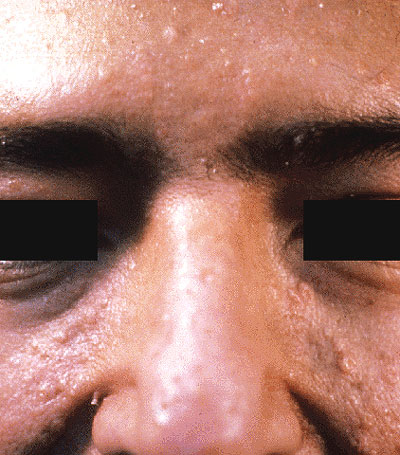 Muir-Torre Syndrome - Medscape Reference