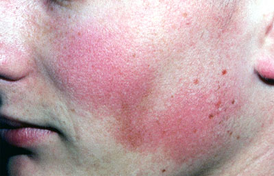 skin atrophy steroids treatment