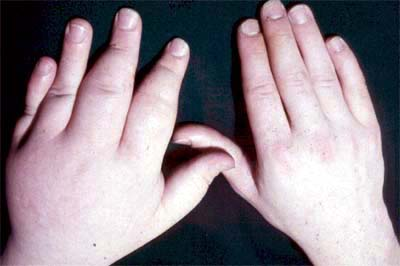 rheumatoid arthritis and psoriasis related