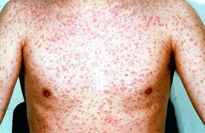 Rubella Defintion & Treatment