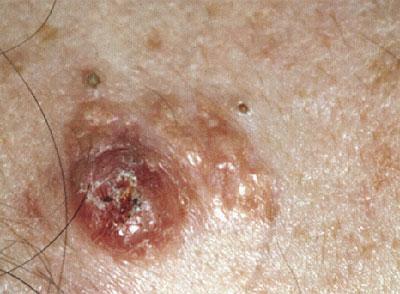 Extraocular Sebaceous Carcinoma - a Rare Tumour at a Rare Site ...