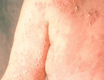 Subcorneal pustular dermatosis   DermNet New Zealand