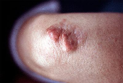 Tuber Tuberous Xanthoma