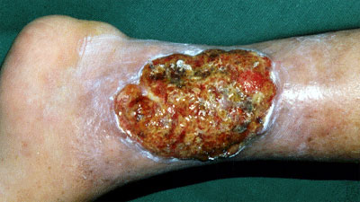 venous insufficiency ulcer
