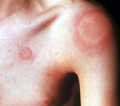 Cutaneous condition - Wikipedia